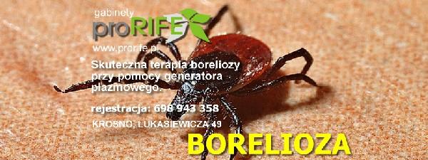 Borelioza - Jedyna Skuteczna Plazmoterapia Generatorem Rife'a